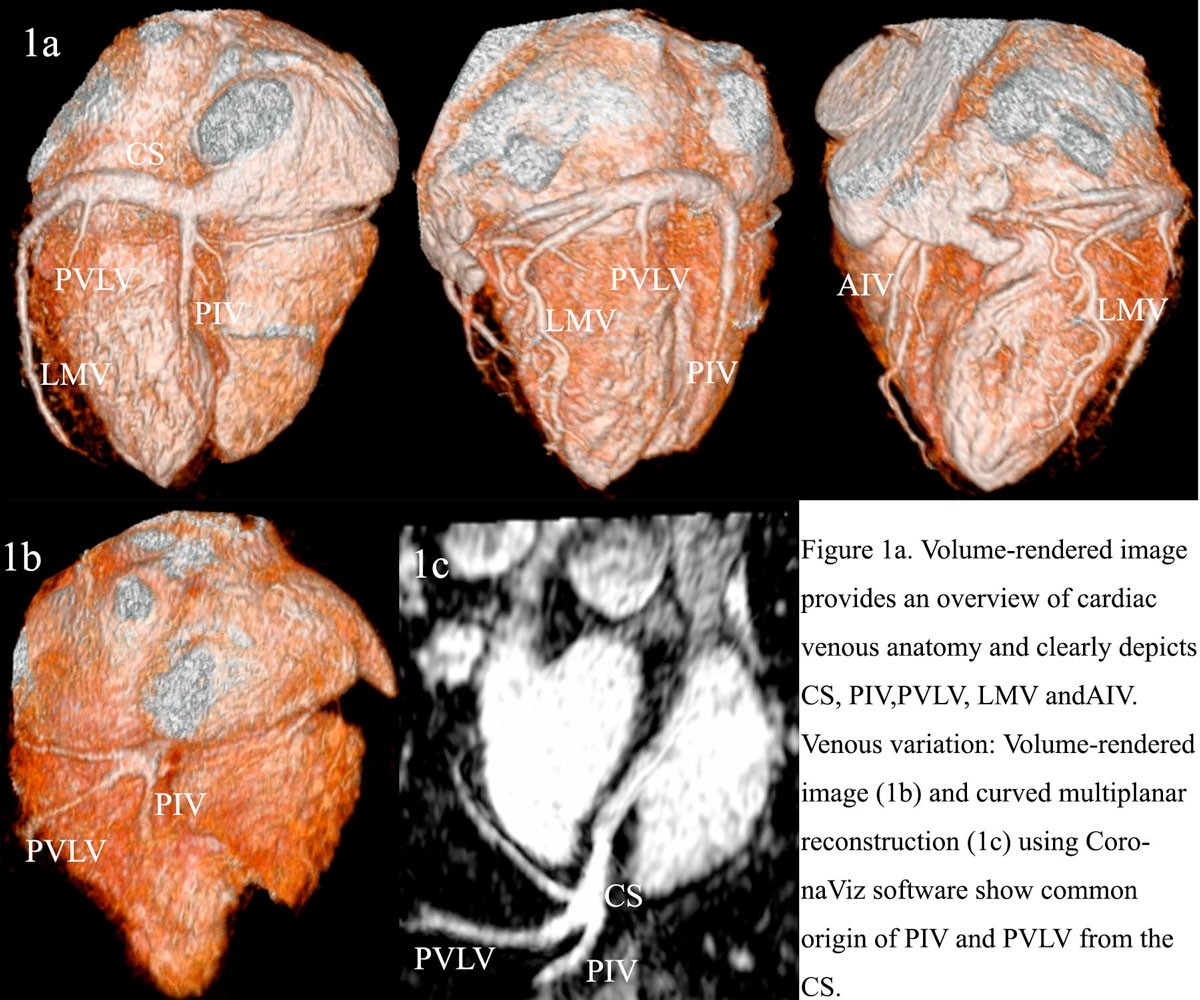 3.0 T contrast-enhanced whole-heart coronary magnetic resonance ...