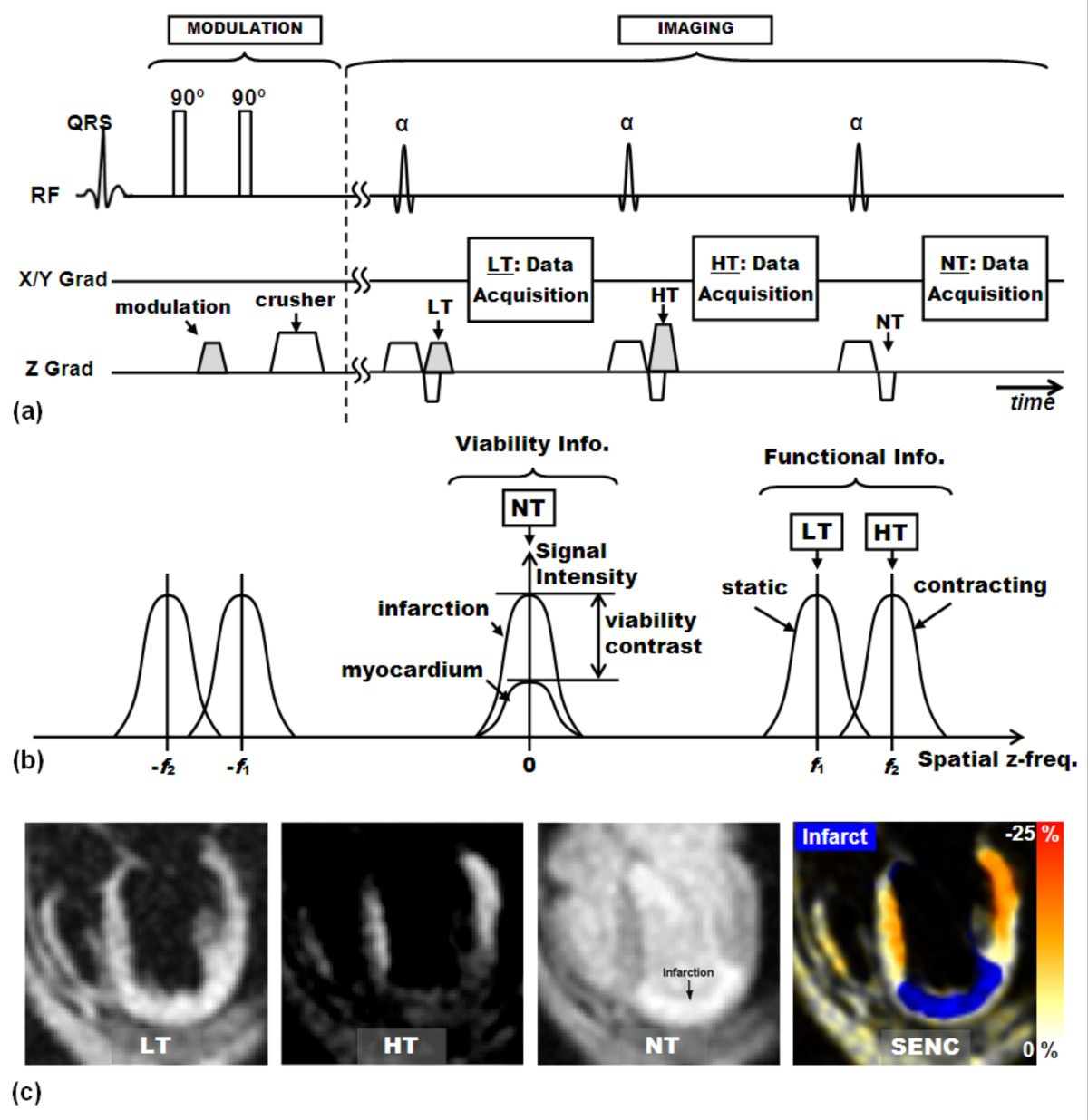 Myocardial Tagging By Cardiovascular Magnetic Resonance Evolution Gilson 16 Hp Wiring Diagram Figure