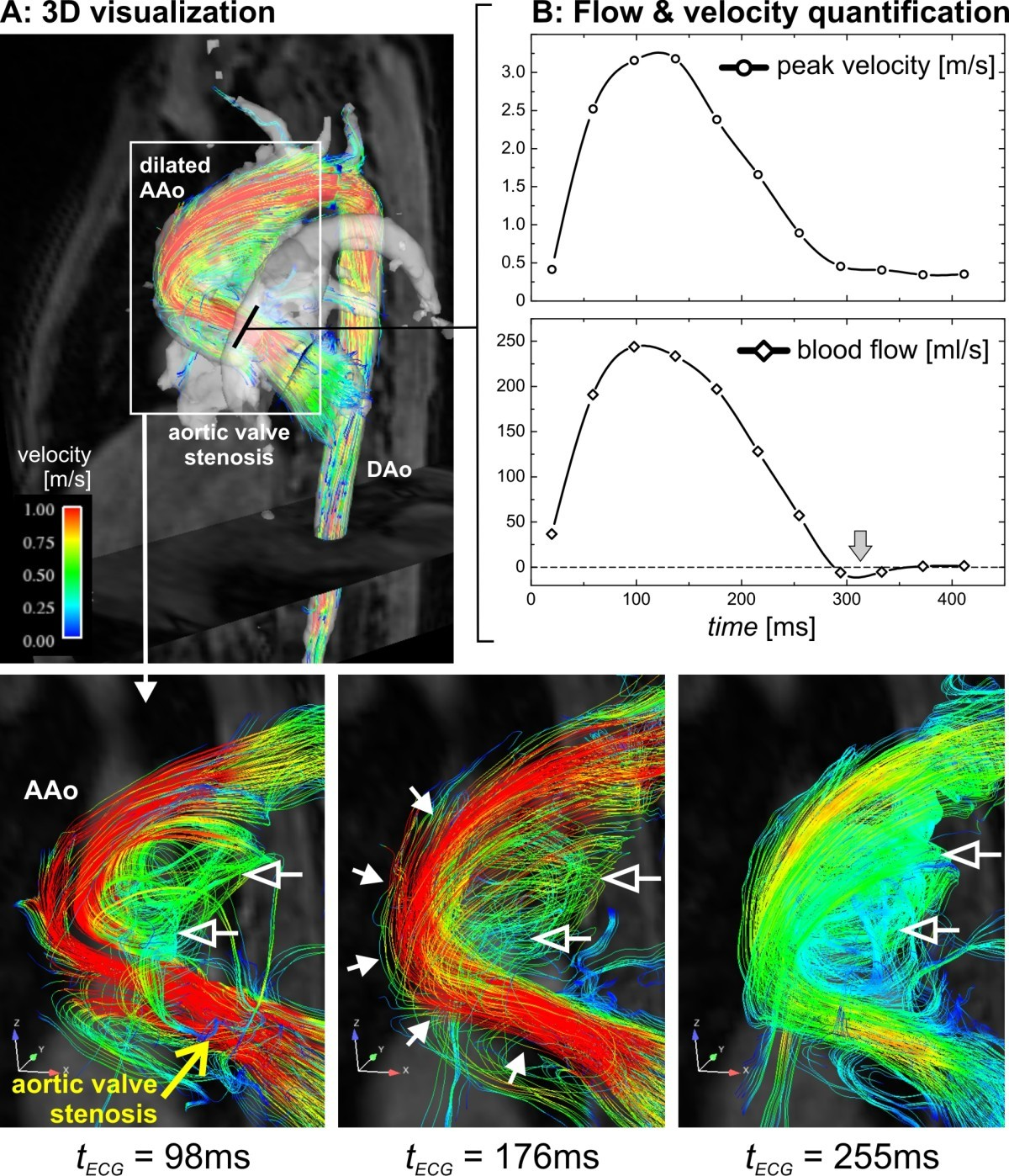 Comprehensive 4d Velocity Mapping Of The Heart And Great Vessels By Diagram 88 Internal Structure Blood Flow Through Figure 12