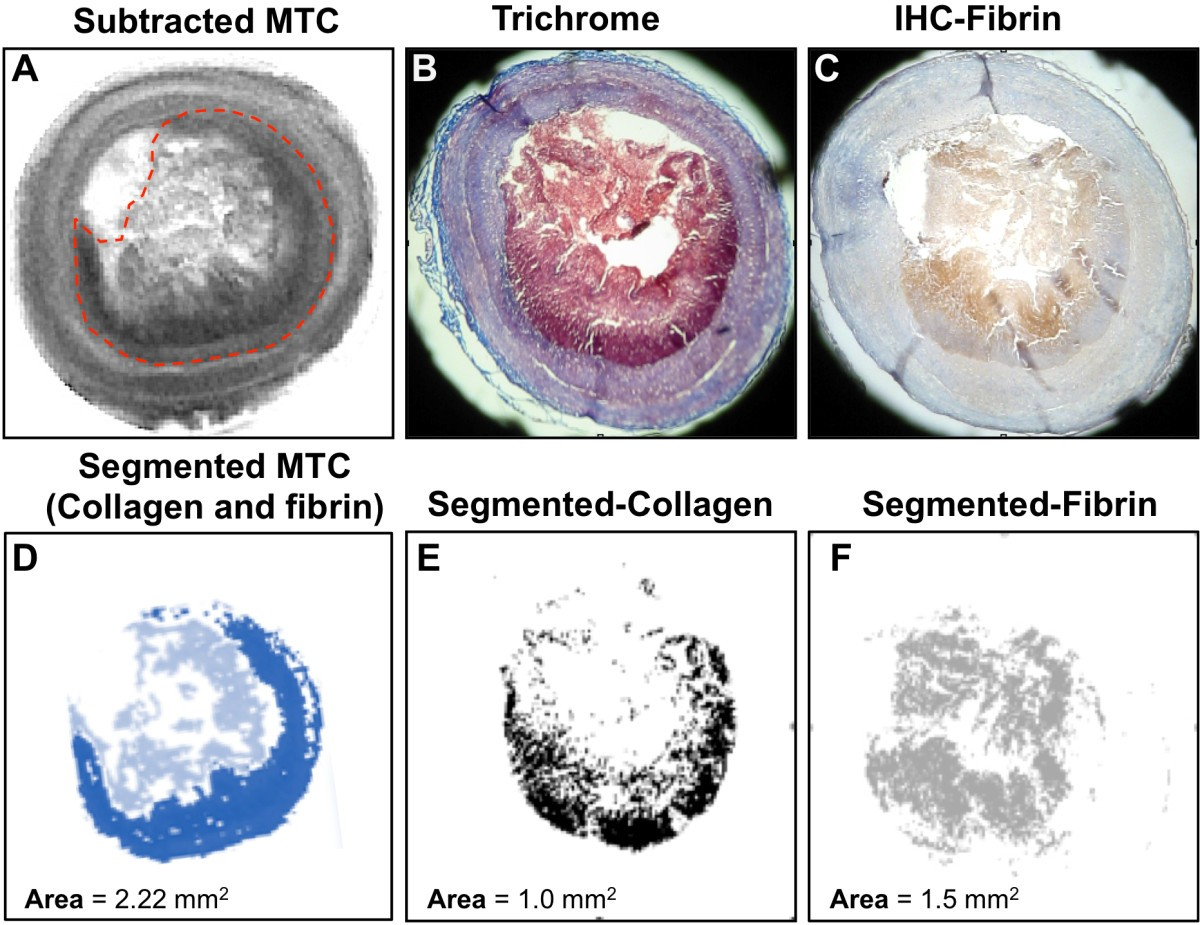 Mural Wall Thrombus Detection Of Thrombus Size And Protein Content By Ex Vivo