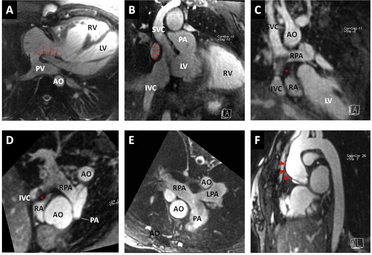Self-navigated free-breathing isotropic 3D whole heart MRI for the ...