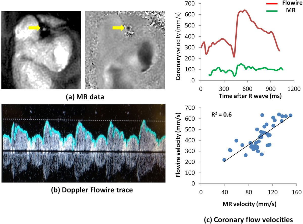 Validation of high temporal resolution spiral phase velocity mapping ...