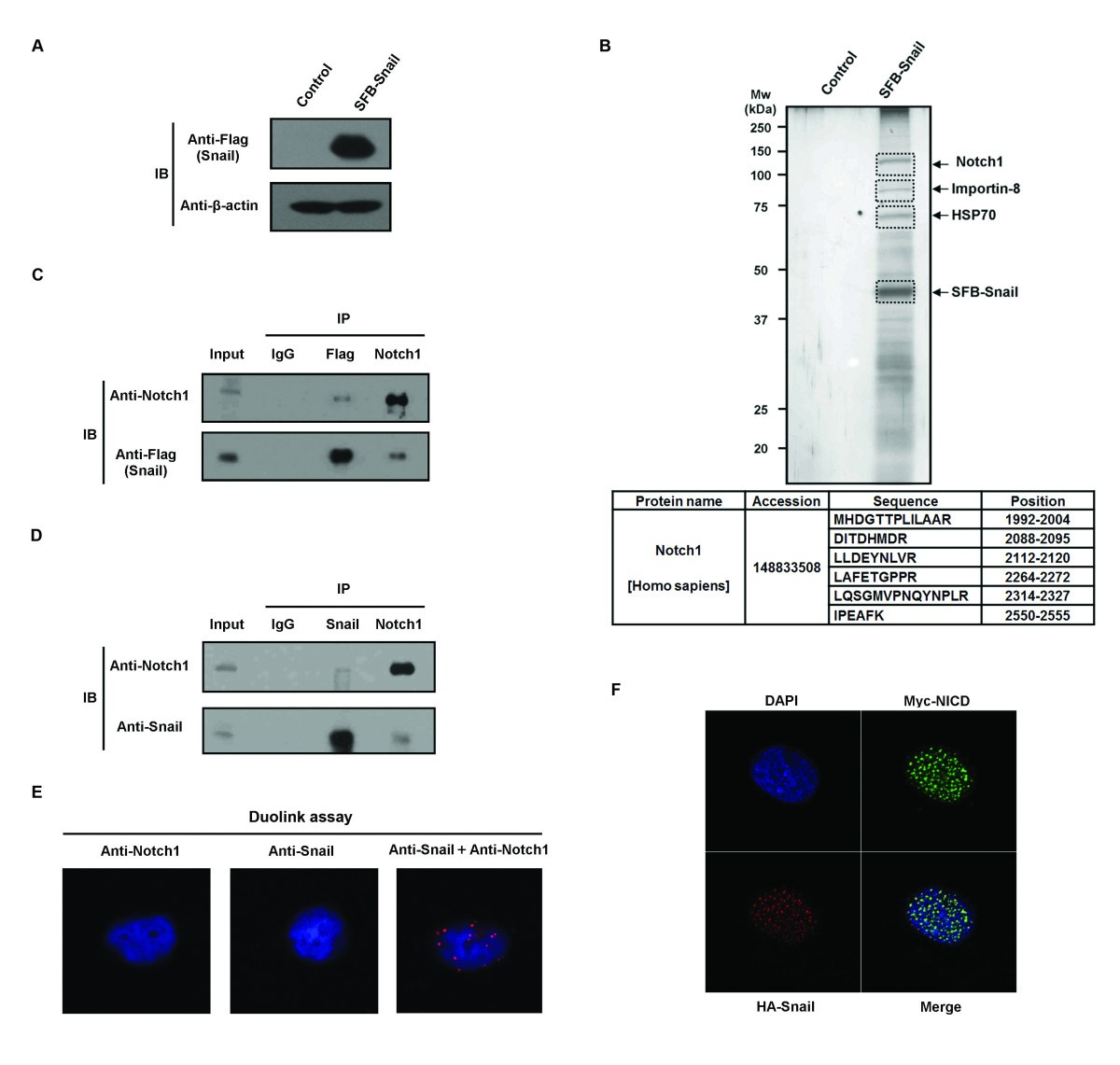 Notch1 Binds And Induces Degradation Of Snail In