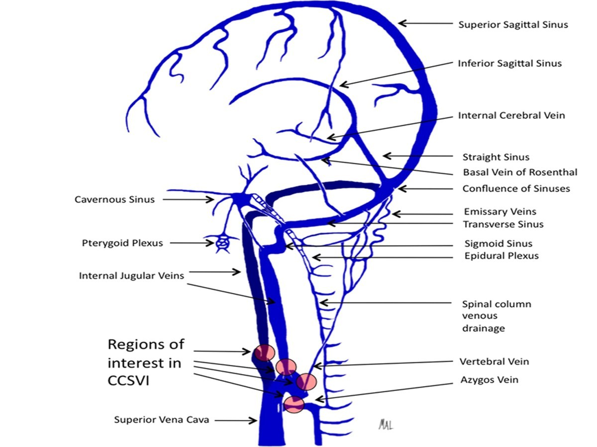 Potential involvement of the extracranial venous system in central ...