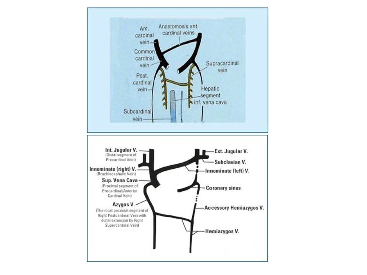 Potential Involvement Of The Extracranial Venous System In Central