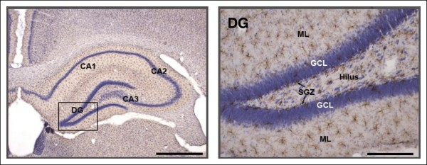 Morphological features of microglial cells in the hippocampal ...