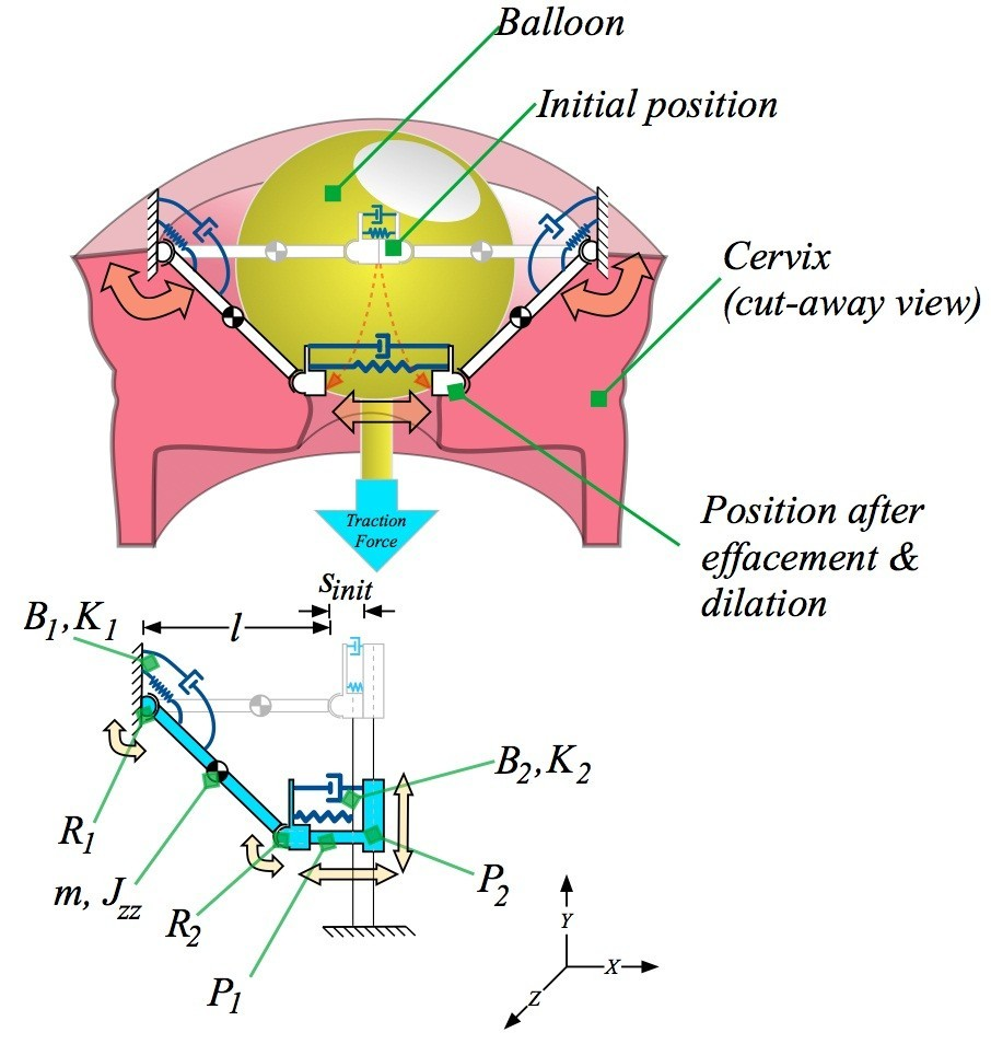 A Simplified Cervix Model In Response To Induction Balloon In Pre
