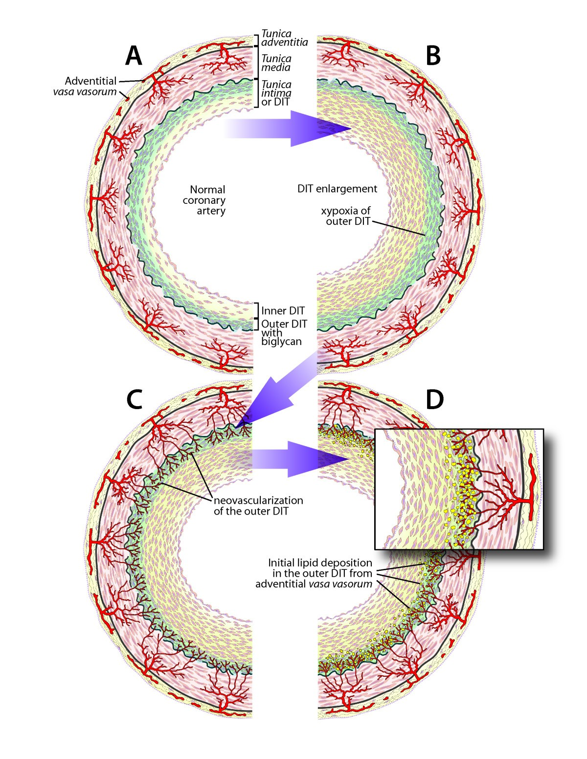 Neovascularization of coronary tunica intima (DIT) is the cause of ...