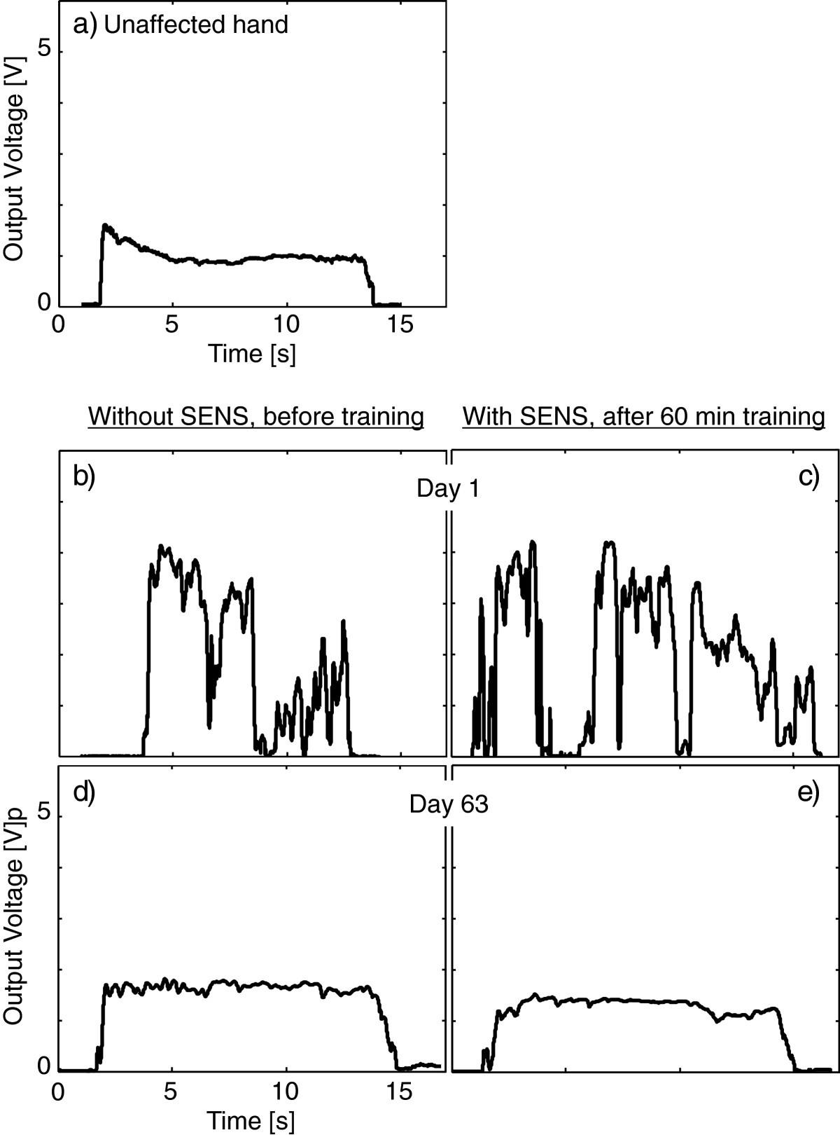 a pilot study of sensory feedback by transcutaneous electrical nerve