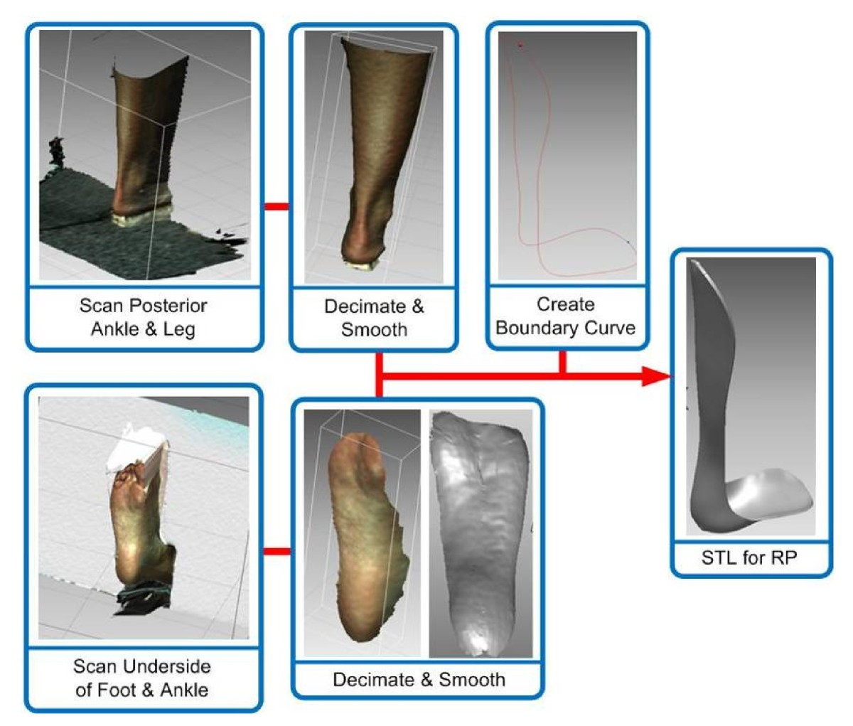 Patient Specific Ankle Foot Orthoses Using Rapid Prototyping