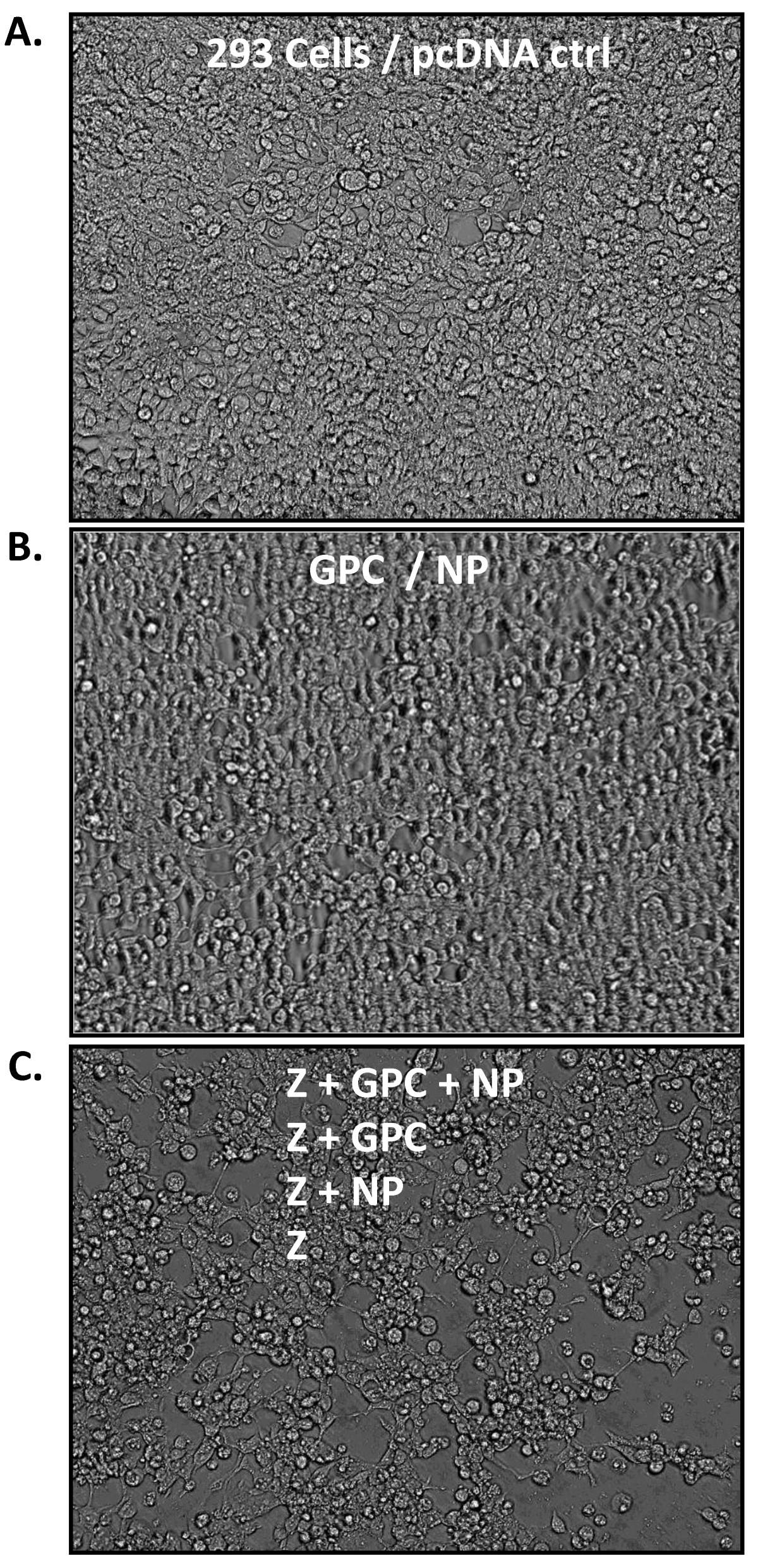 Lassa Virus Like Particles Displaying All Major Immunological