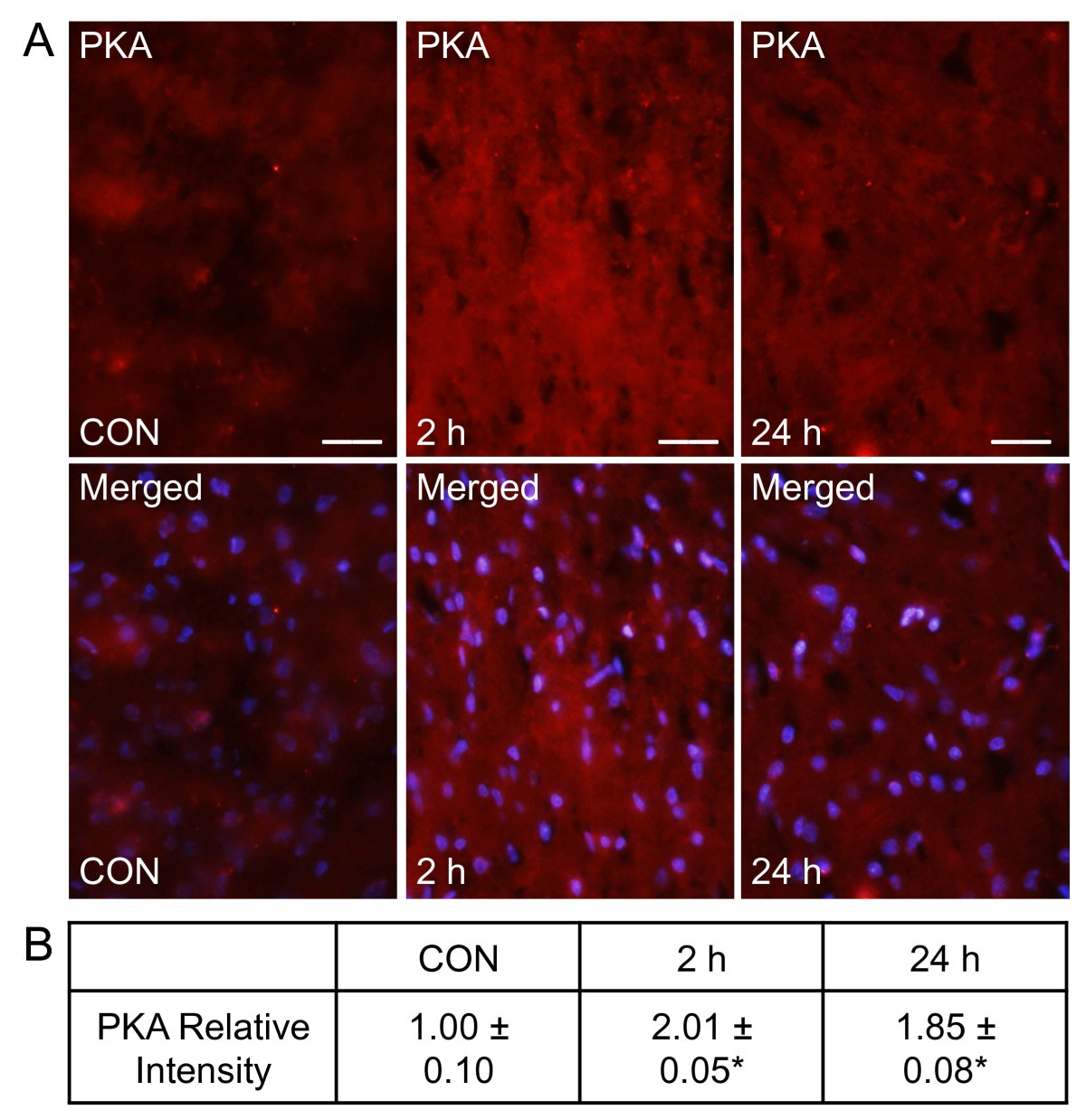 Calcitonin gene-related peptide promotes cellular changes in