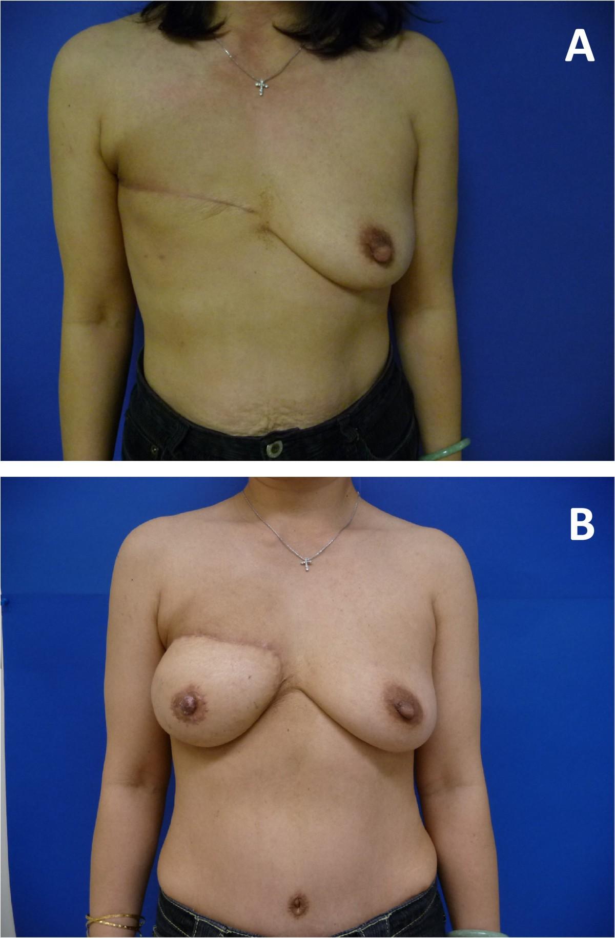 Nevada breast reconstruction — 15