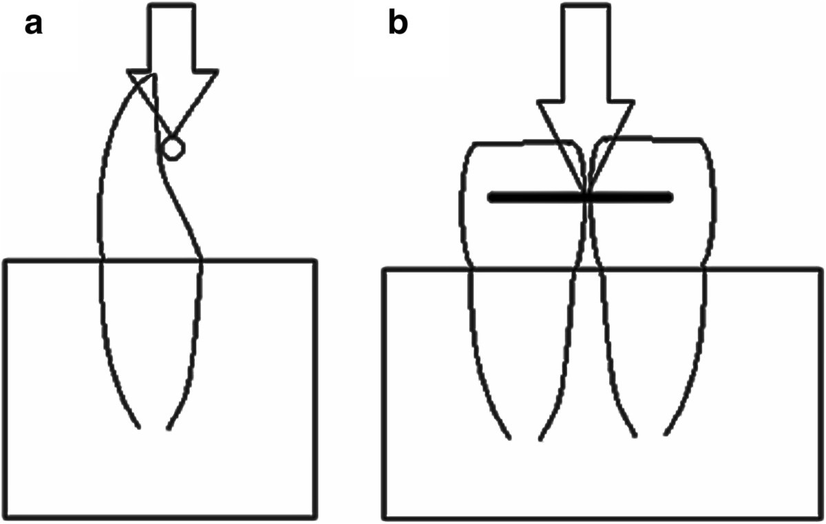 Shear Bond Strength Of Different Retainer Wires And Bonding Wire Diagram Figure 2 Schematic