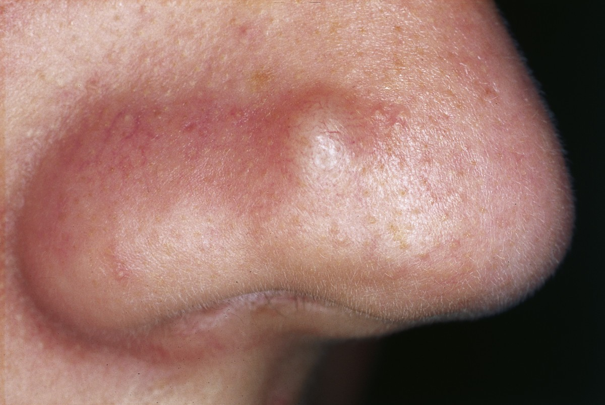 Cutaneous Lesions Of The Nose Head Face Medicine Full Text