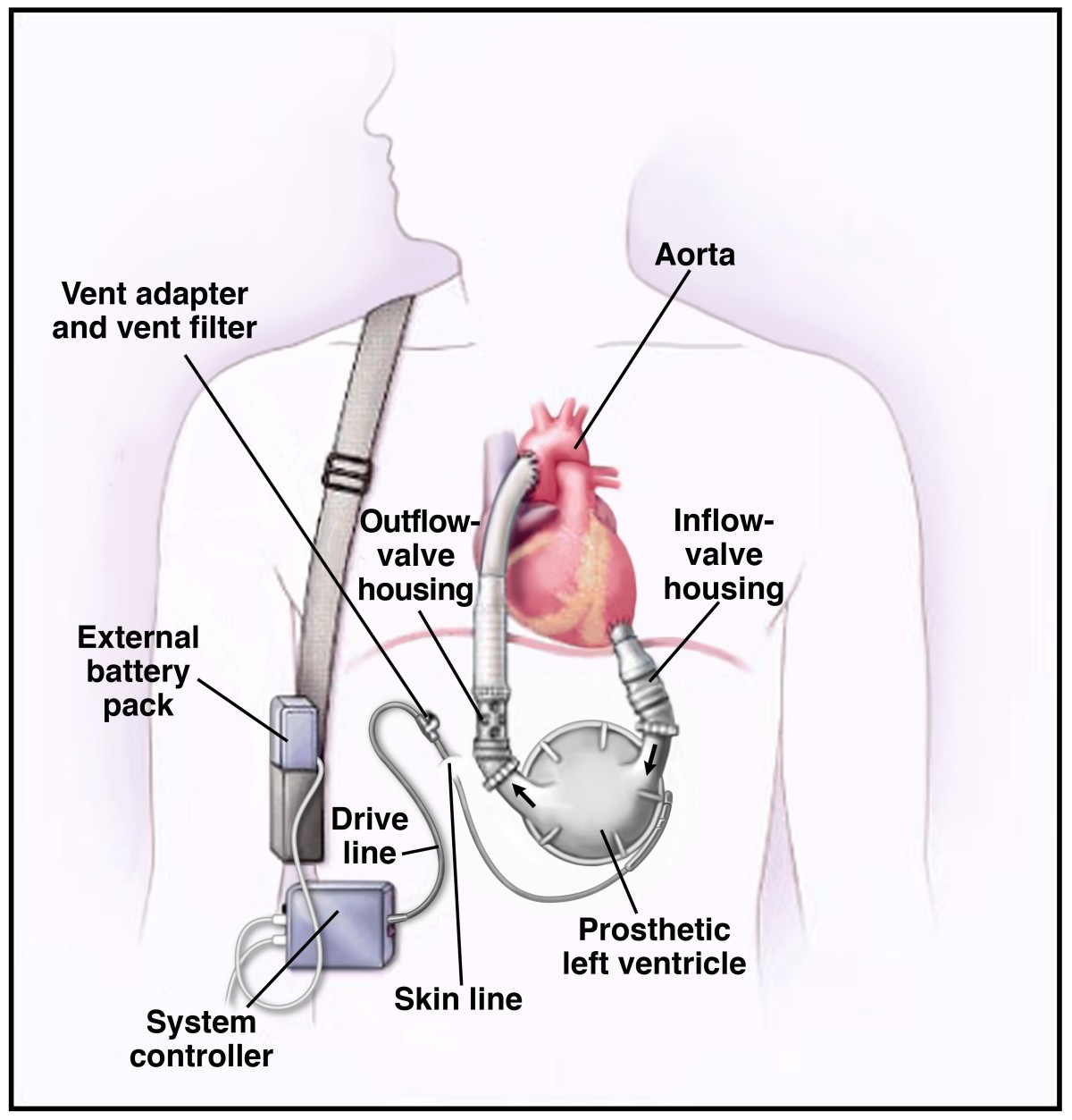 ethical challenges with the left ventricular assist device as a Skin Layers Diagram Labeled figure 1