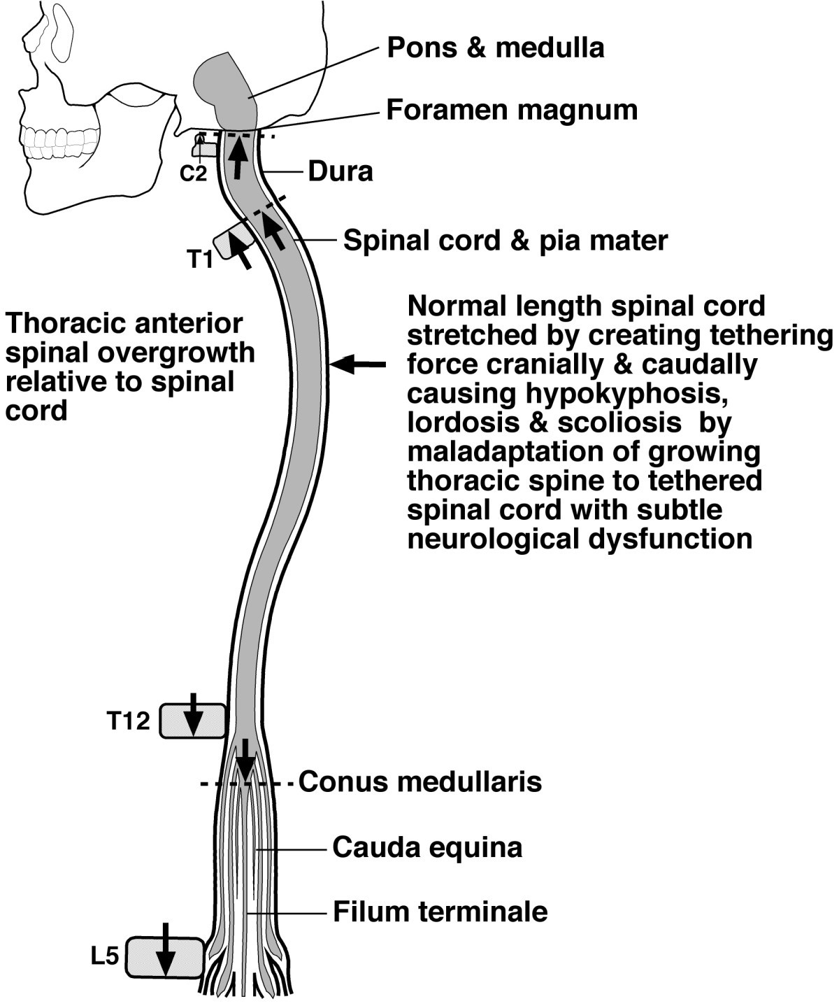 figure 1 - Tethered Spinal Cord
