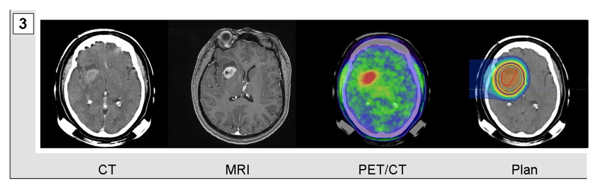 imaging hypoxia in glioblastoma multiforme with pet May differentiate glioblastoma multiforme from less malignant gliomas eur j nucl med mol imaging regional hypoxia in glioblastoma multiforme quantified with [18f]fluoromisonidazole positron emission tomography before radiotherapy.
