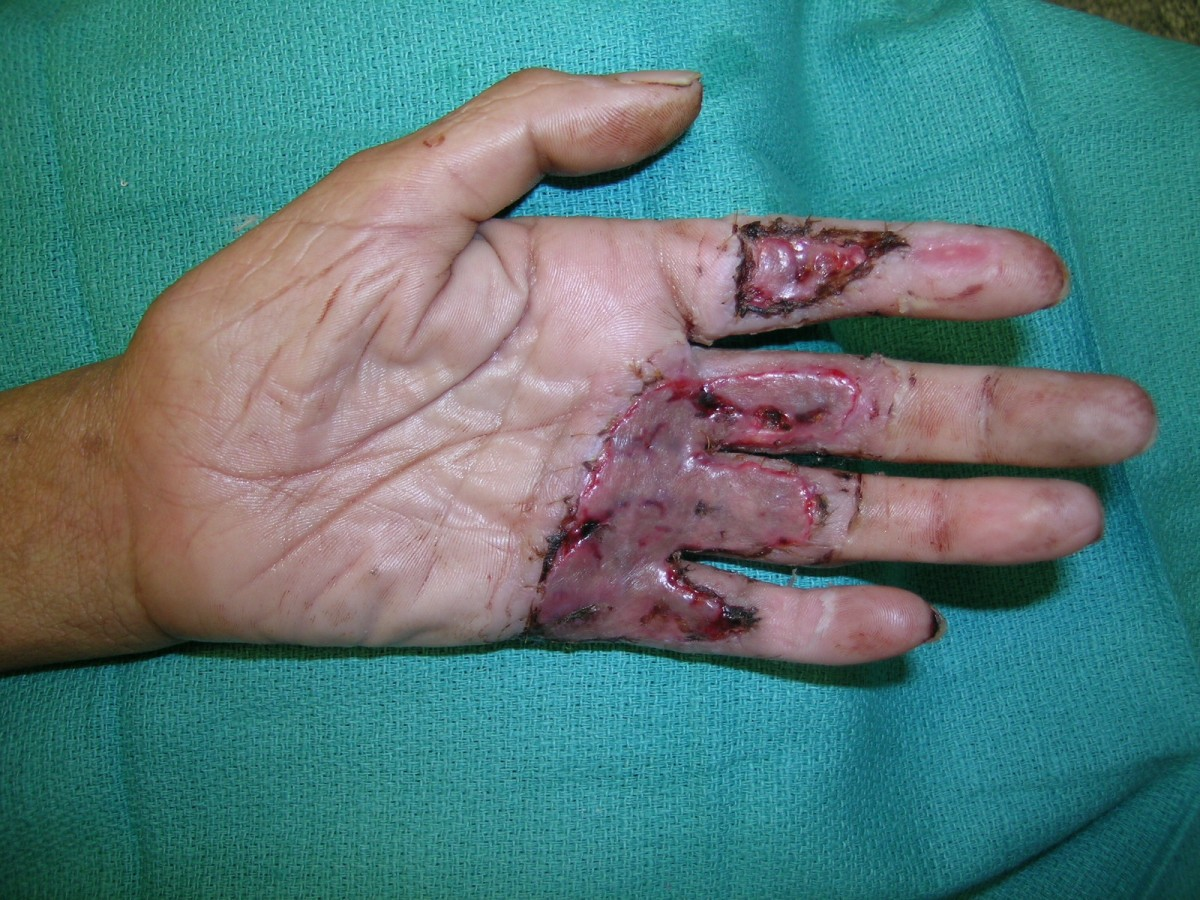 Experiences With Waterjet Hydrosurgery System In Wound