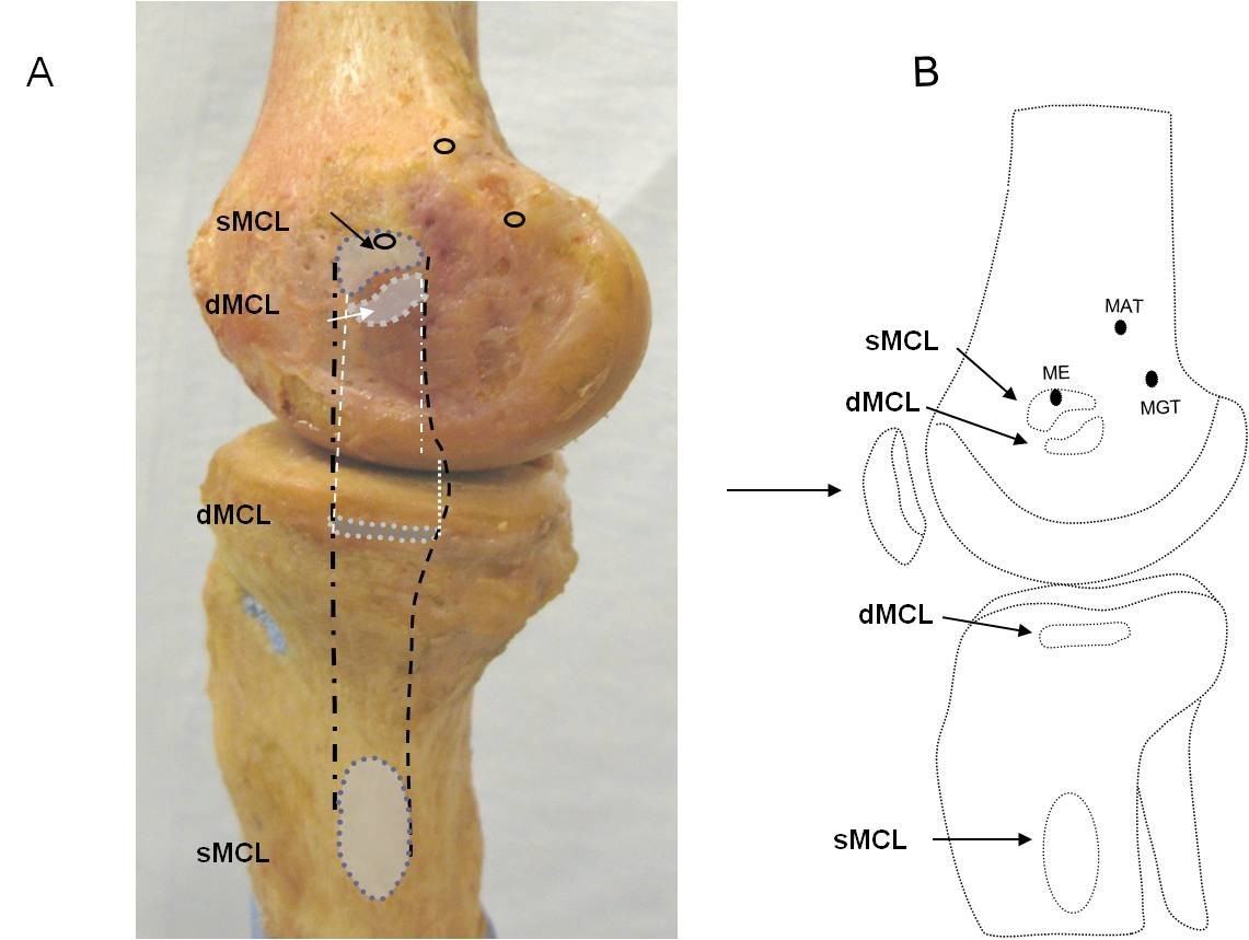 Morphology of the medial collateral ligament of the knee | Journal ...