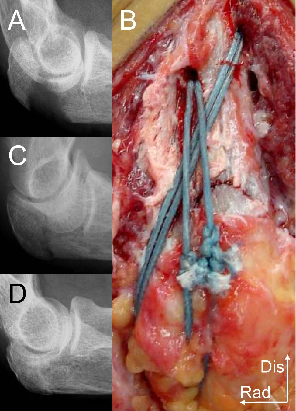 Repair Of Olecranon Fractures Using Fiberwire Without Metallic Tension Band Wiring Figure 1