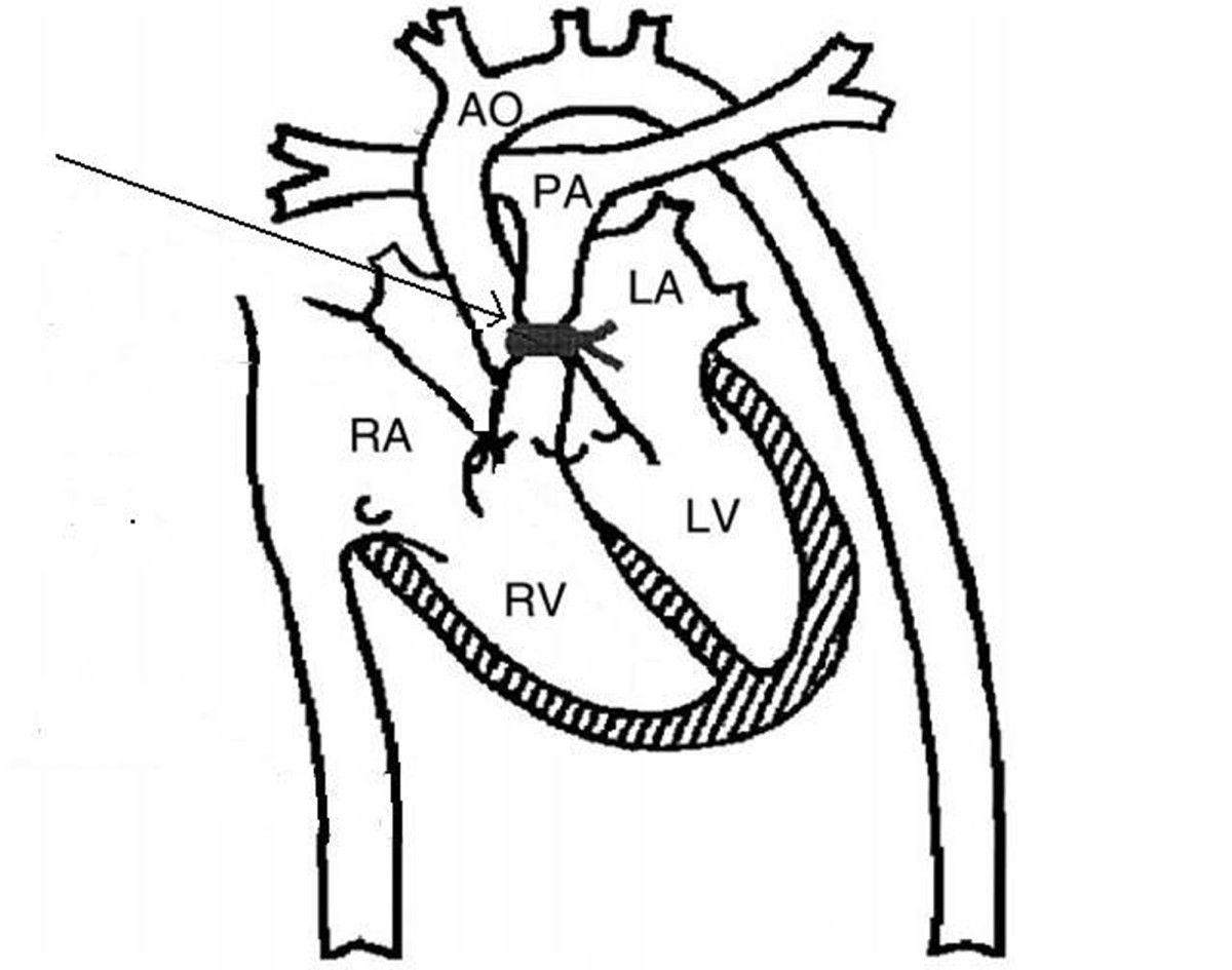 acute pressure overload of the right ventricle  comparison