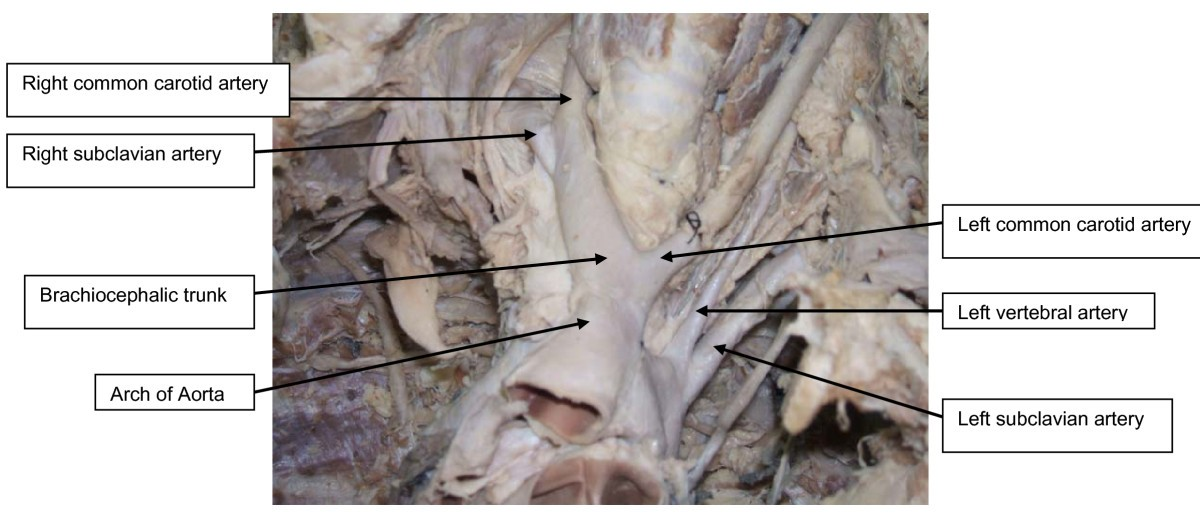 A Variant Branching Pattern Of The Aortic Arch A Case Report