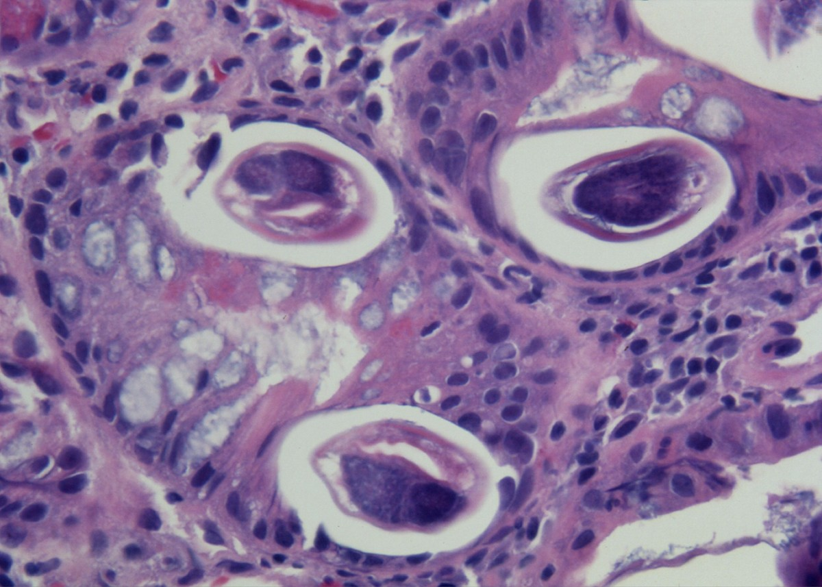 Dissemination Of Strongyloides Stercoralis In A Patient