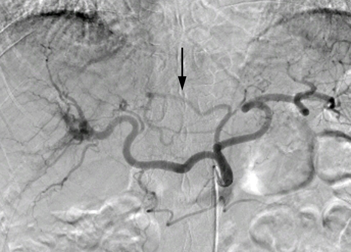Catheterization And Embolization Of A Replaced Left Hepatic Artery