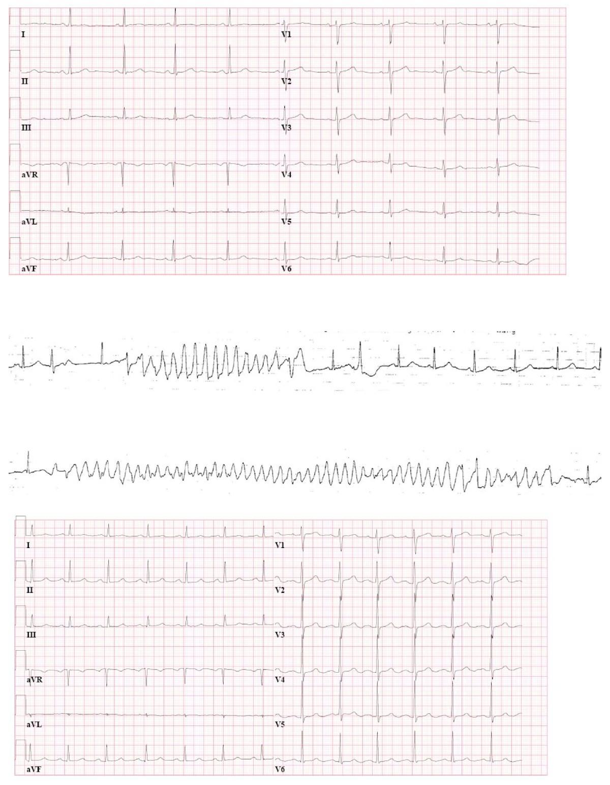 Torsades de pointes during laparoscopic adrenalectomy of a