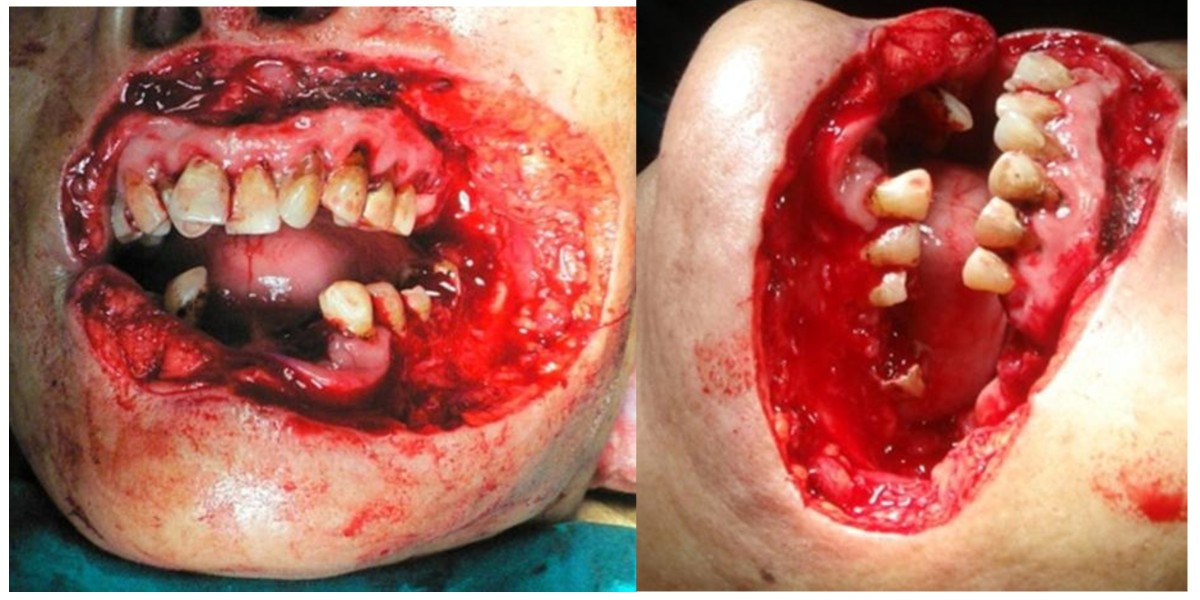 Advanced Squamous Cell Carcinoma Involving Both Upper And Lower Lips And Oral Commissure With