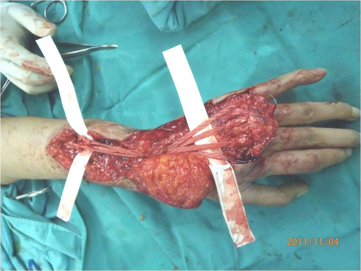 usage of synthetic tendons in tendon reconstruction bmc