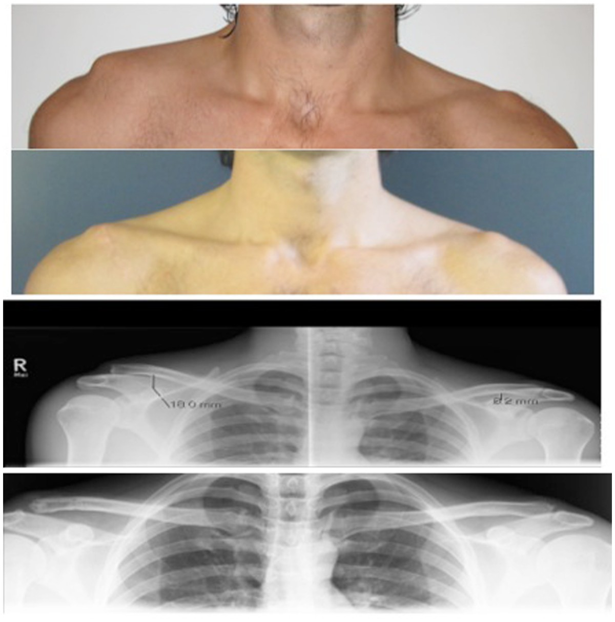 Clavicle Xray Reconstruction of disp...