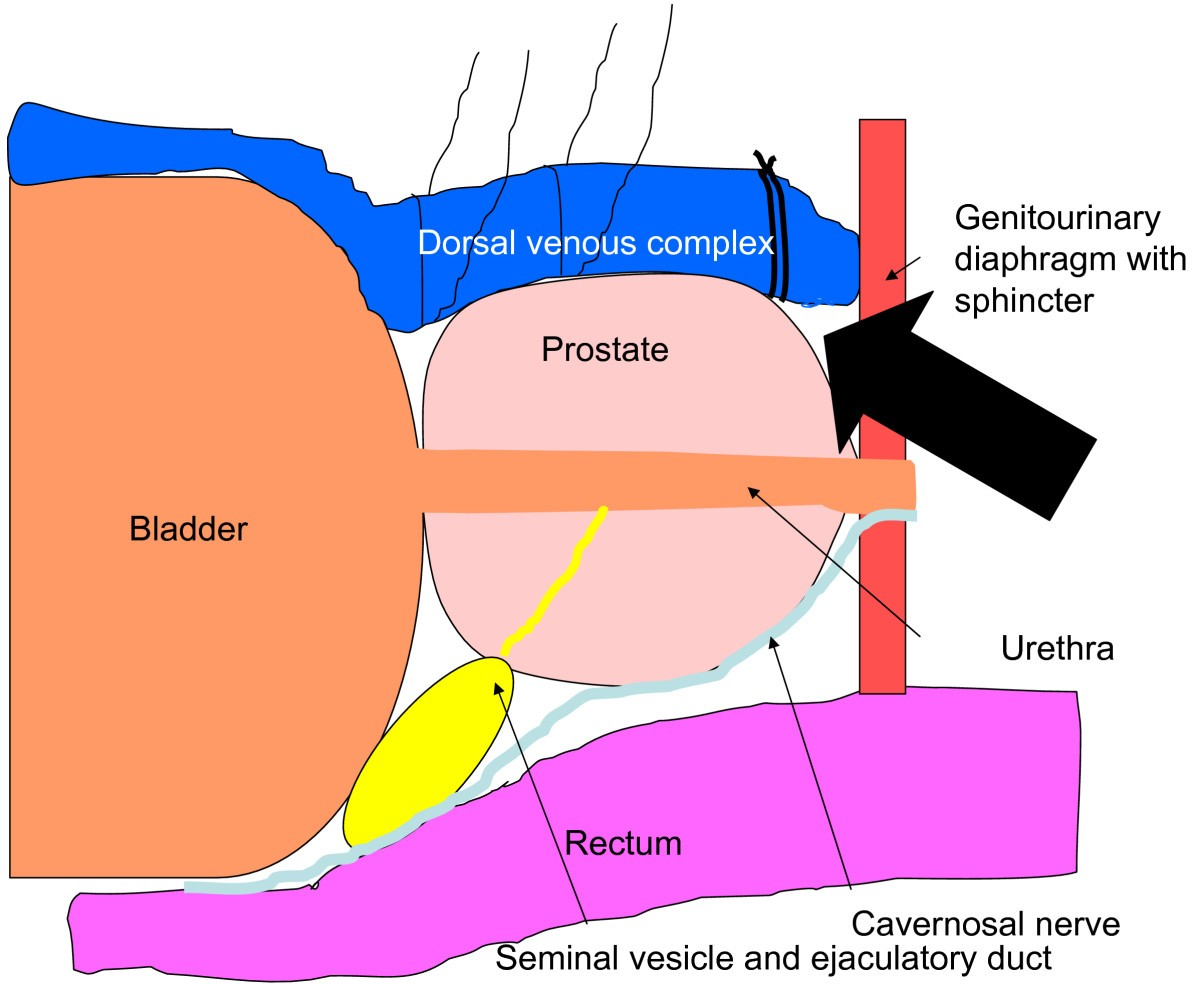 Blunt Apical Dissection During Anatomic Radical Retropubic