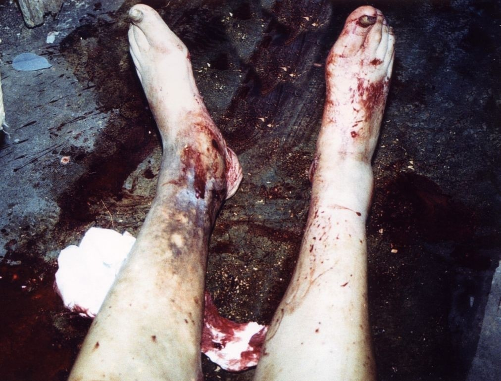 Unusual Death Due To A Bleeding From Varicose Vein Case Report