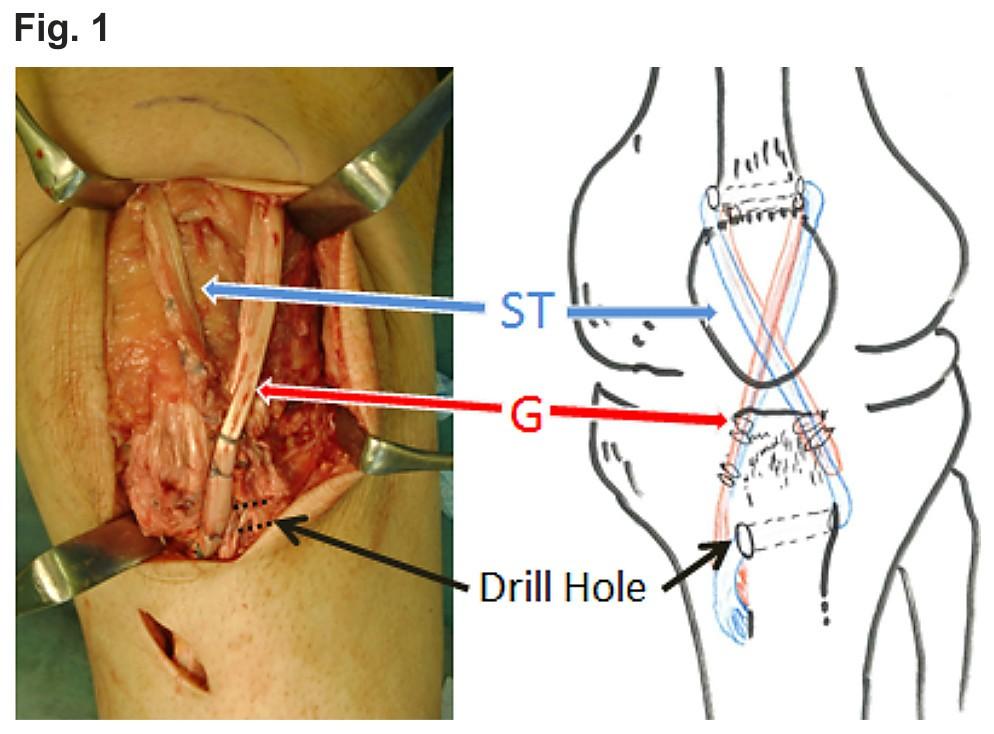 Open Patellar Tendon Repair Cpt Code Online User Manual