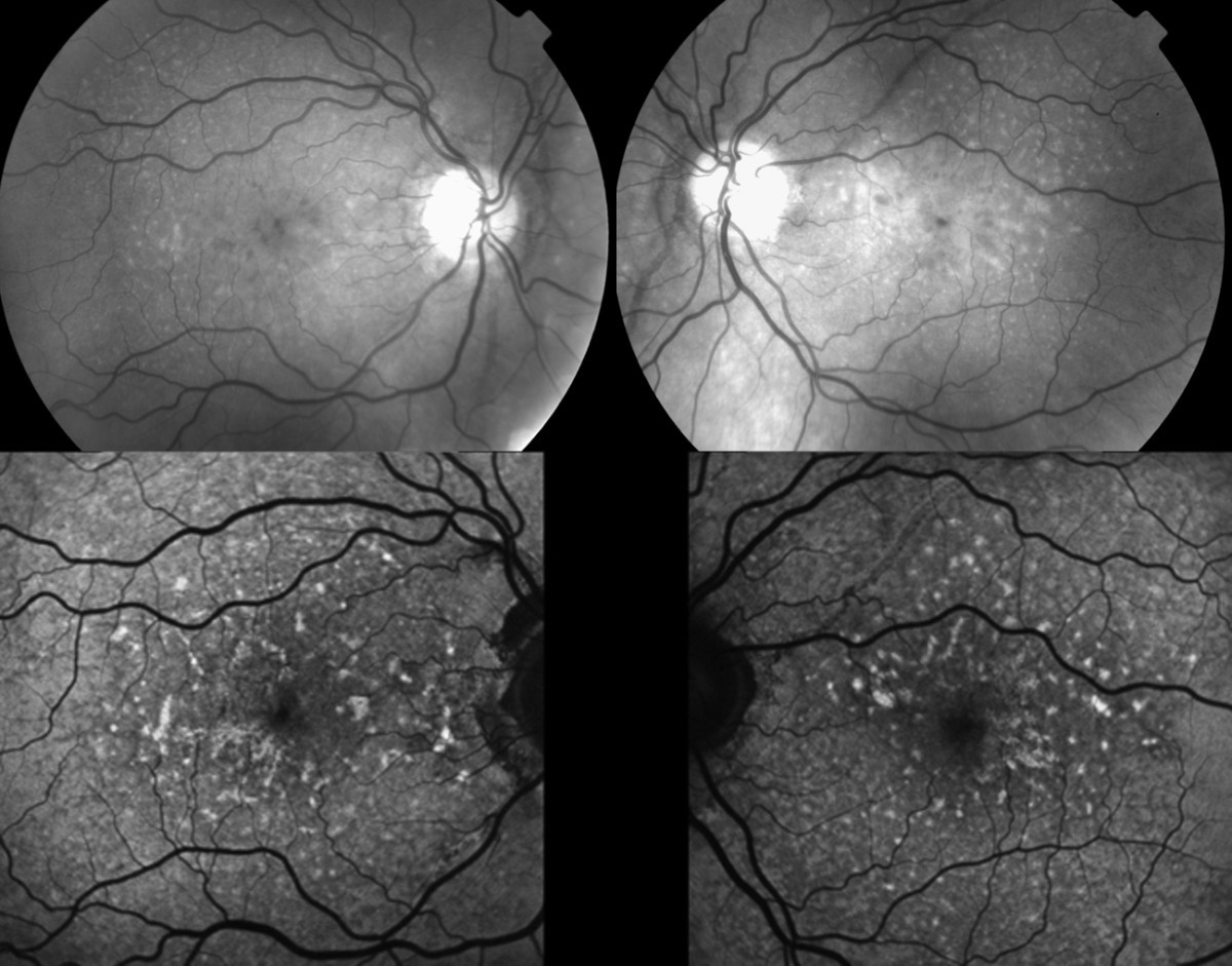 An Atypical Case Of Choroidal Neovascularization Associated With