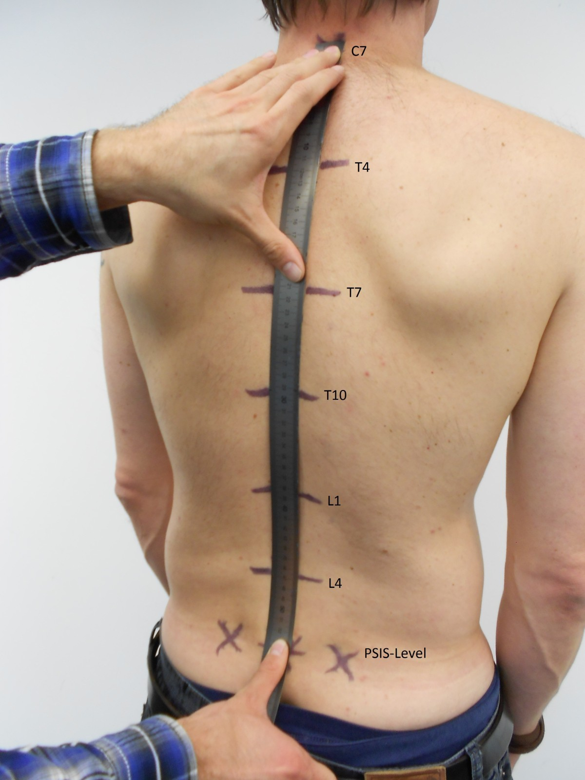 Determination Of Thoracic And Lumbar Spinal Processes By Their