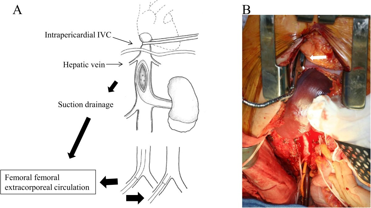 Early Occlusion Control Of The Intrapericardial Inferior Vena Cava