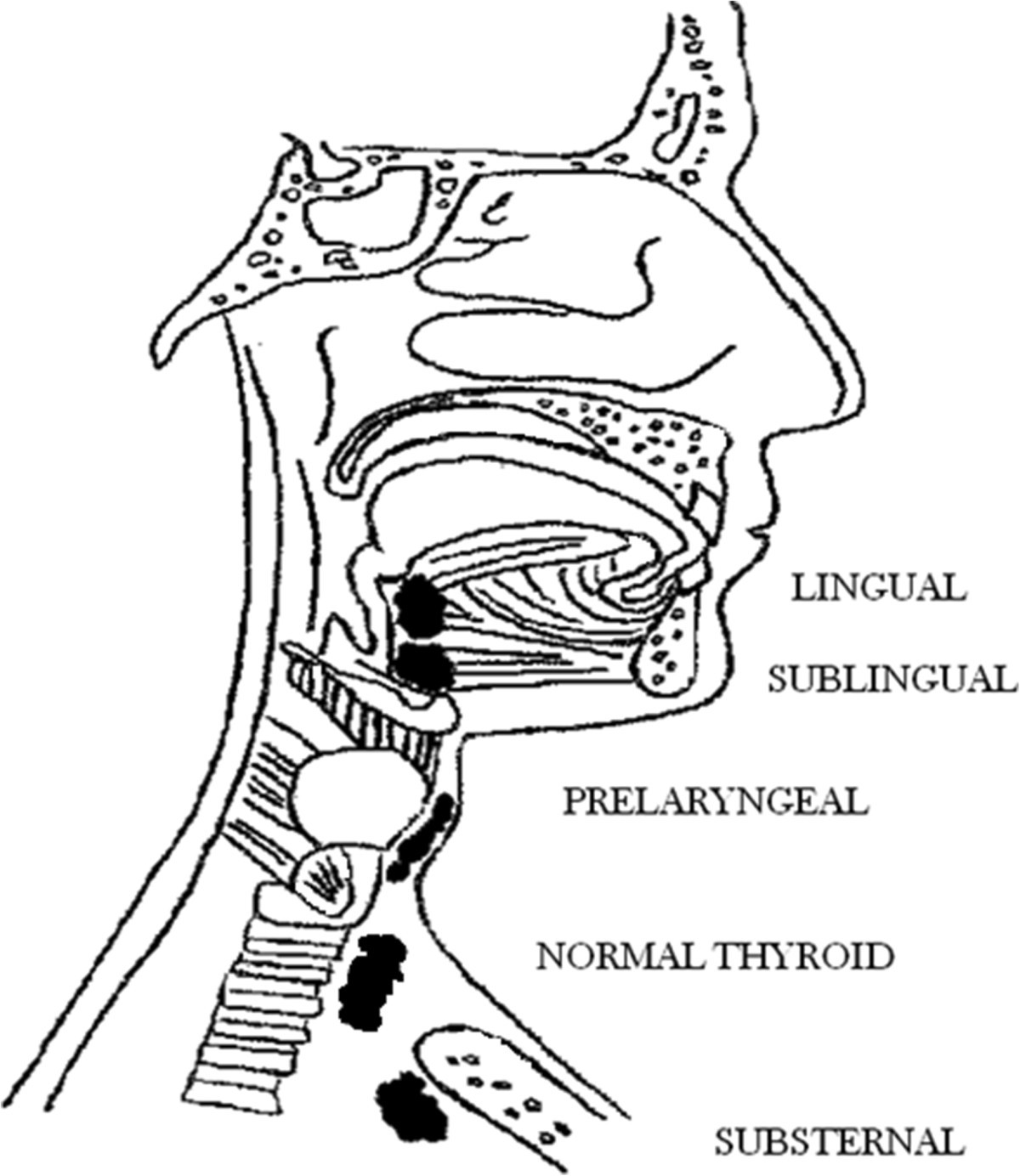 Ectopic thyroid tissue in the head and neck: a case series | BMC ...