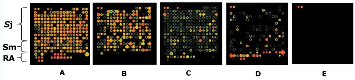 Schistosomiasis vaccine discovery using immunomics parasites figure 3 malvernweather Choice Image