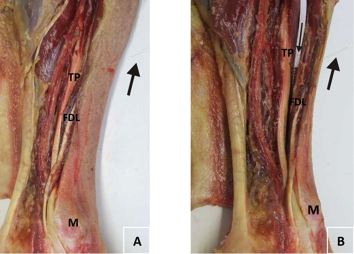 Tibialis posterior in health and disease: a review of structure and ...