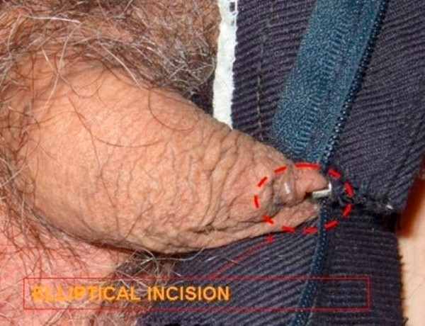 Foreskin trapped by zipper: a case report | Cases Journal ...