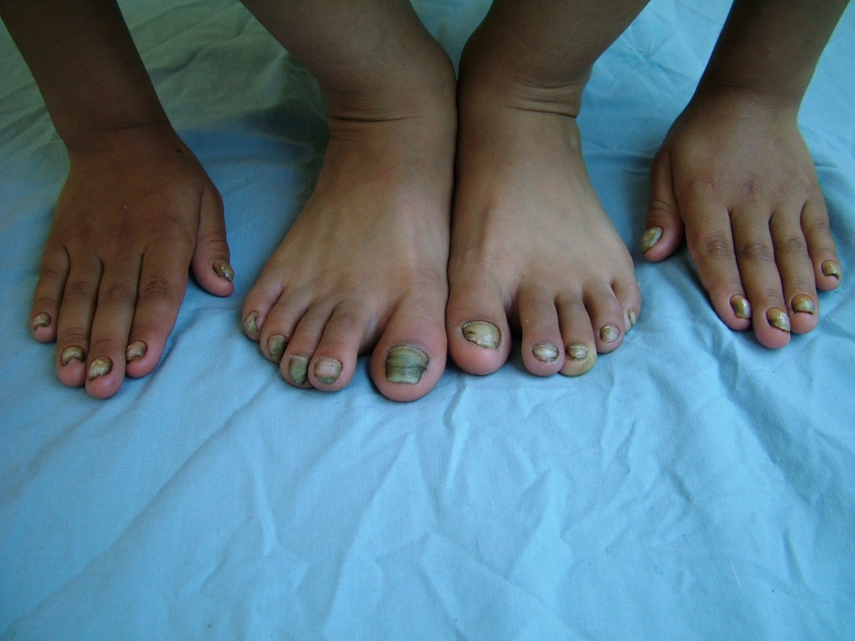 Nonclassical yellow nail syndrome in six-year-old girl: a case ...