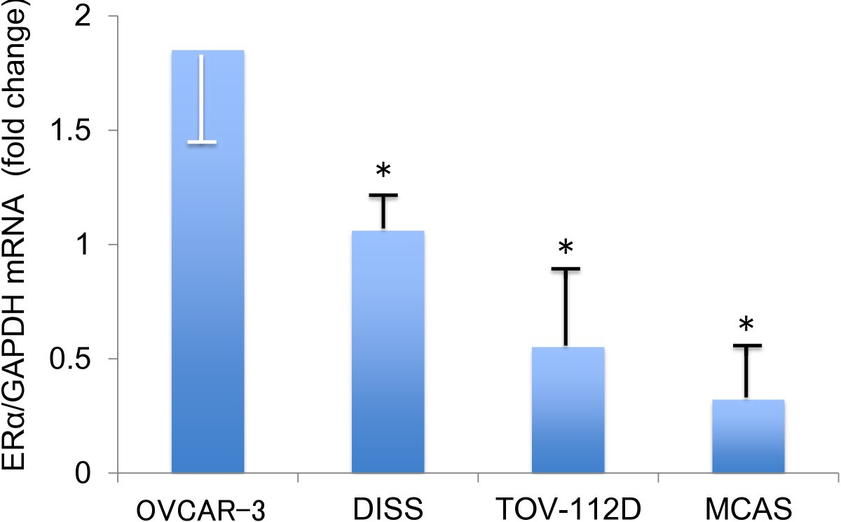 evaluation of effects of ovariectomy and Estrogen-deficient ovariectomized (ovx) rats, and it mediates received 3/4/04   evaluate the effects of the aromatase inhibitors on bone metab- olism (9, 10.