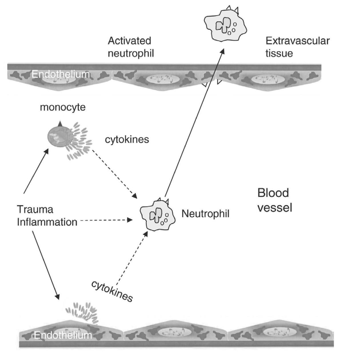 sir systemic inflammatory response