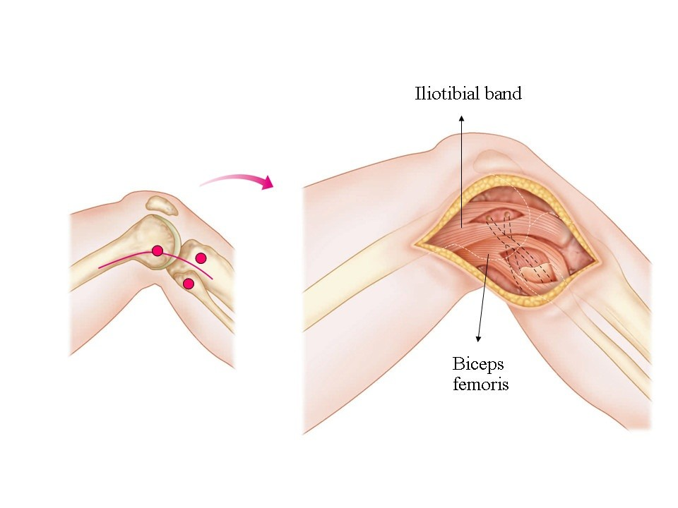 A modified Larson\'s method of posterolateral corner reconstruction ...