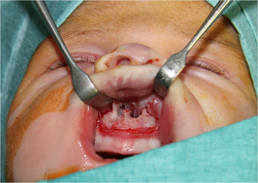 Congenital nasal pyriform aperture stenosis: diagnosis and ...