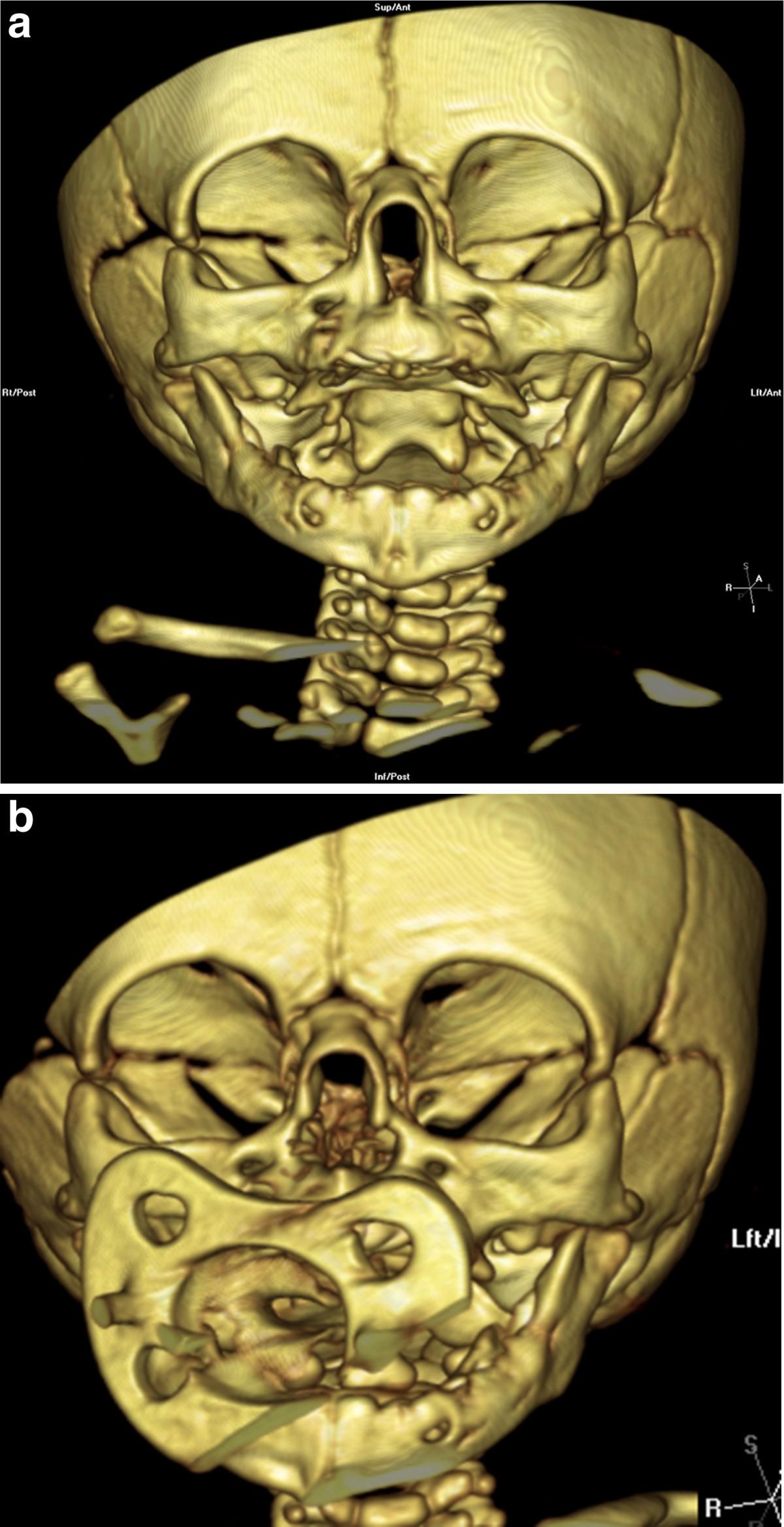 Congenital Nasal Pyriform Aperture Stenosis Diagnosis And
