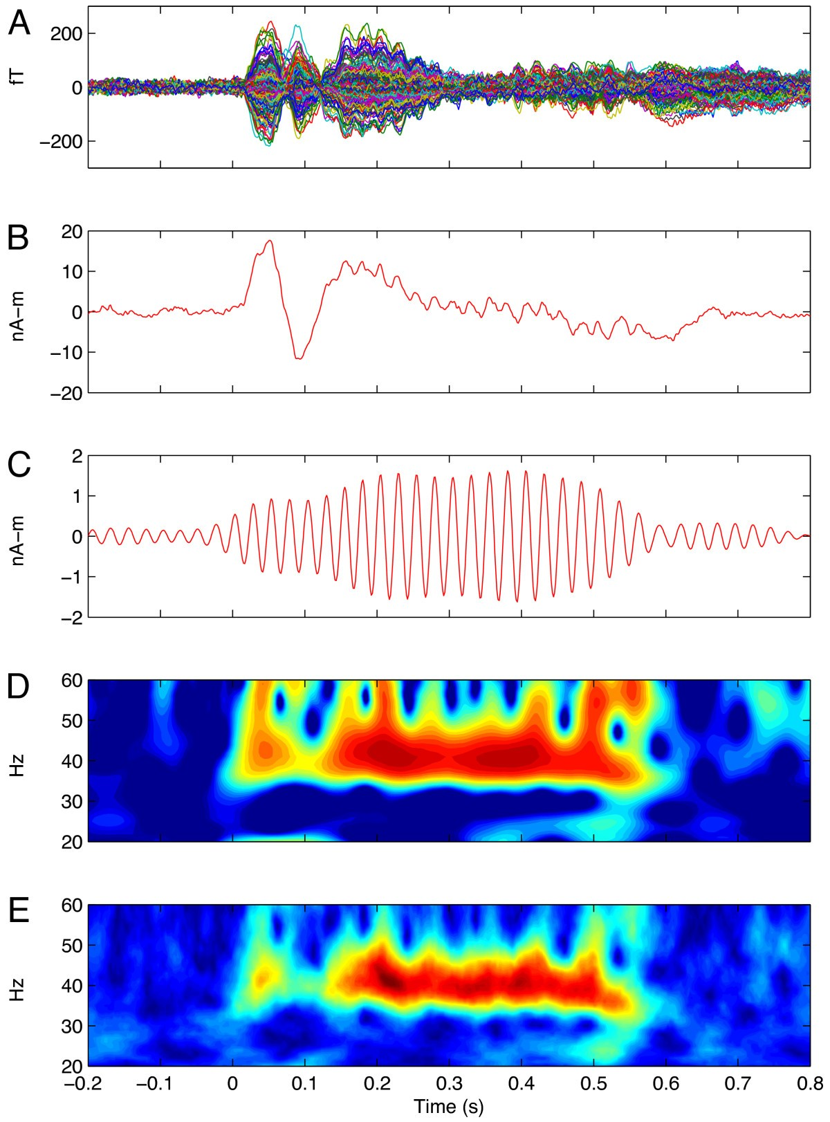 Transient and steady state auditory gamma band responses in first